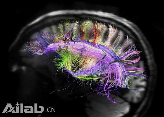 这家公司8万美元冷冻大脑 以待将来复活