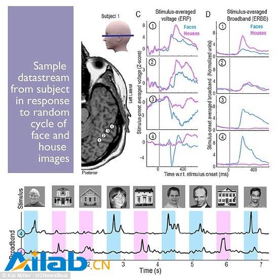 脑电波技术新突破:读心准确率达95%